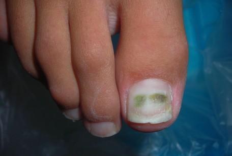 Le unghie dei piedi ci parlano della nostra salute